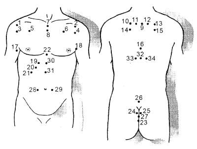 Лечение бронхиальной астмы пиявками